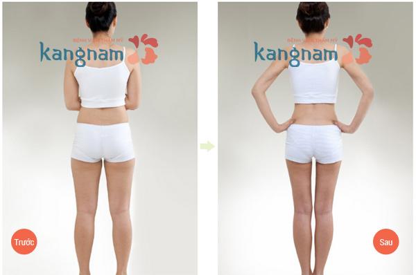 Hút mỡ bụng tại BVTM Kangnam 1