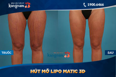 Hut-Mo-Lipo-Matic-3D-2