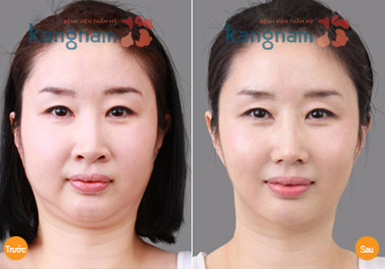 Kết quả giảm béo mặt của khách hàng tại BVTM Kangnam 1