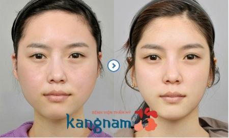 Kết quả giảm béo mặt của khách hàng tại BVTM Kangnam