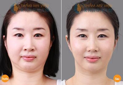 giảm béo mặt