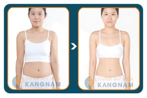 Laser Lipo - Cơn sốt giảm béo 2014