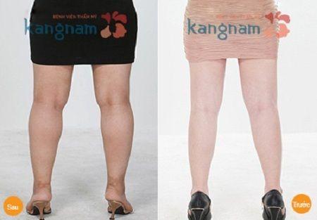 cách giảm mỡ chân 8