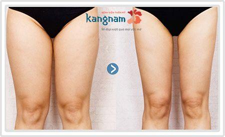 chi phí giảm mỡ đùi tại kangnam giá bao nhiêu2