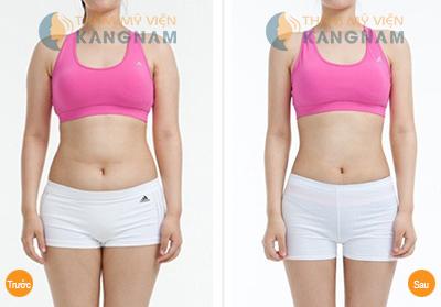 Giảm béo cấp tốc, hiệu quả nhân 3