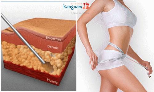 giảm béo không phẫu thuật 1