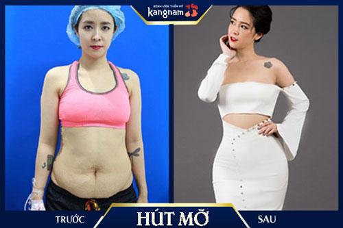 giảm béo phì