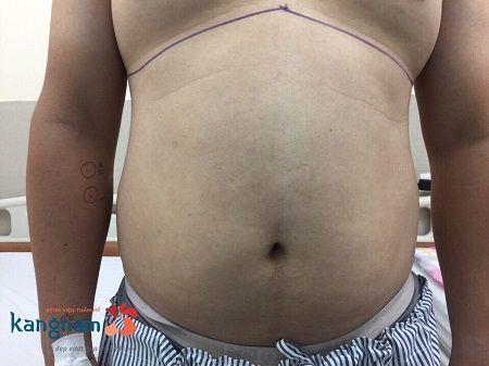 giảm mỡ bụng 2