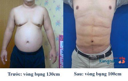 giảm mỡ bụng bằng laser lipo có hiệu quả không