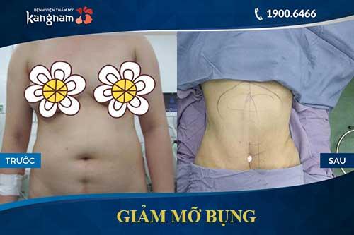giảm mỡ bụng lipo matic 3d 2