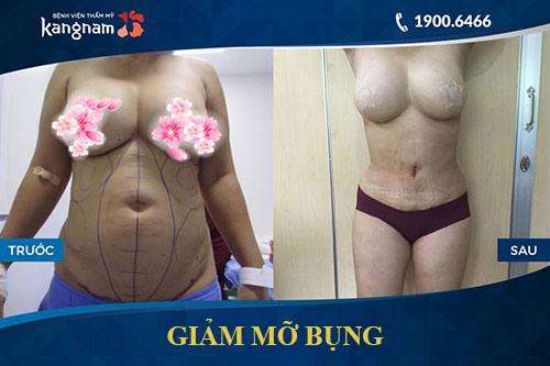 giảm mỡ bụng lipo matic 3d 3