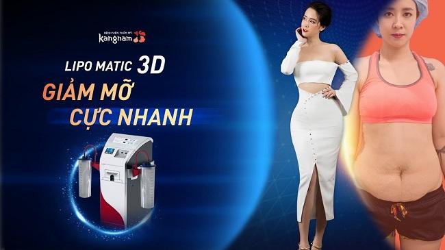 giảm mỡ công nghệ lipo matic 3D của Kangnam