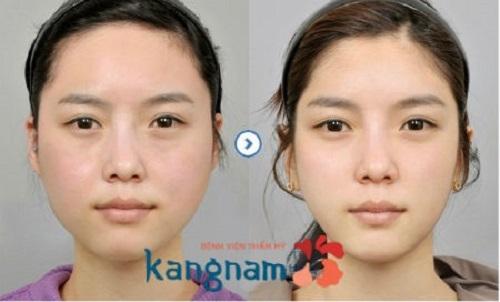giảm mỡ mặt tại Kangnam