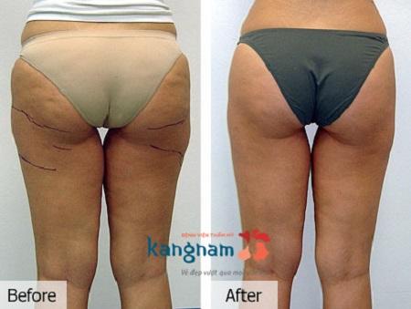 giảm mỡ mông có hiệu quả không2