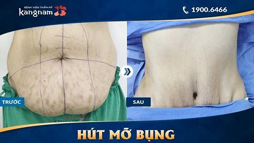 giảm mỡ vùng bụng tại kangnam
