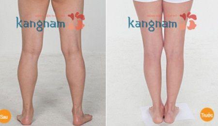 Mỡ thừa ở bắp chân phải làm sao