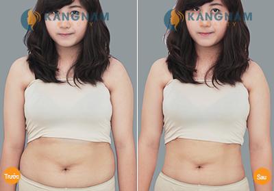 Có cách nào làm tan mỡ bụng nhanh nhất mà không ăn kiêng?5