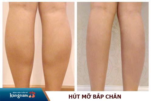 hút mỡ bắp chân Kangnam