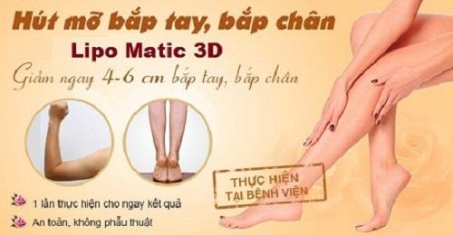 Hút mỡ bắp chân Lipo Matic 3D