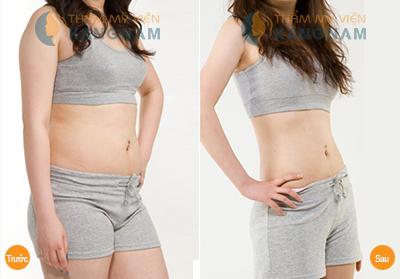 Bị béo bụng phải làm thế nào đây?7