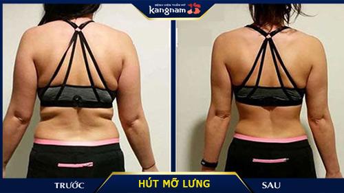 hút mỡ lưng kangnam