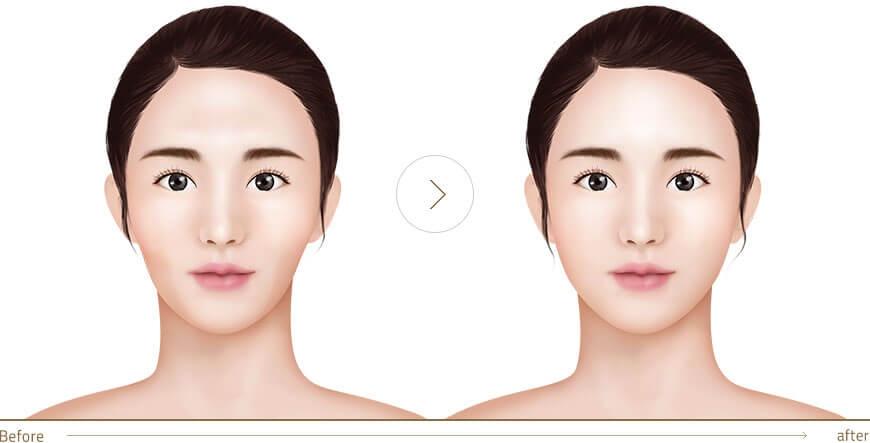 Hút mỡ mặt có đau không?
