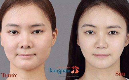 Hút mỡ mặt không đau đớn