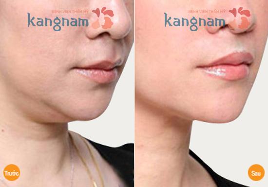 Hút mỡ mặt có hại không?
