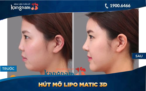 hút mỡ mặt Lipo Matic 3d