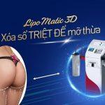 Hút mỡ mông Lipo Matic 3D – Thon gọn vòng 3, tươi trẻ vóc dáng!