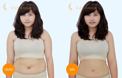 Lý do nên giảm mỡ bụng dưới bằng công nghệ Laser Lipo?6