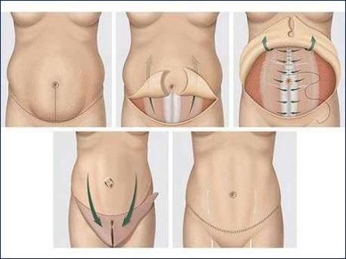 tạo hình thành bụng toàn thể