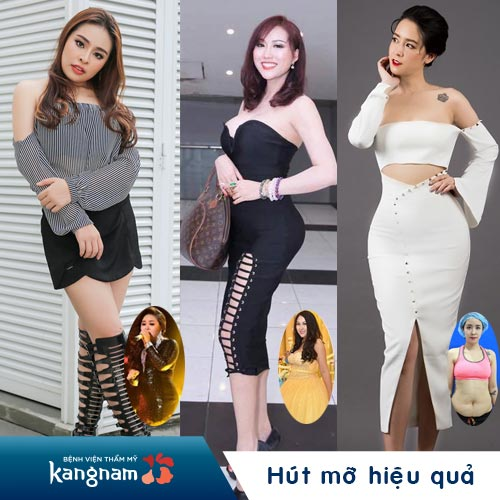 hut-mo-khong-phau-thuat-lipo-matic-3d-1-lan-hieu-qua-95
