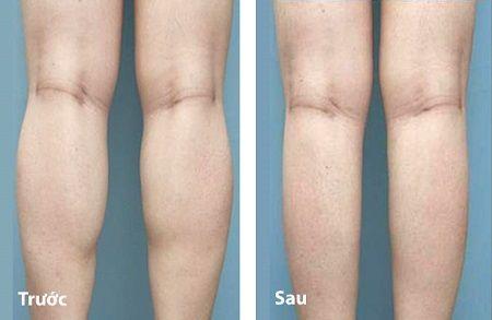 kinh ngạc với kết quả giảm mỡ đùi , bắp chân